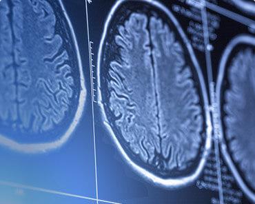 נוירולוגיה